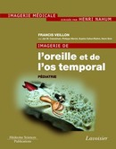 Imagerie de l'oreille et de l'os temporal - Volume 5 : Pédiatrie  De VEILLON Francis - MEDECINE SCIENCES PUBLICATIONS