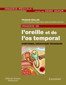 Imagerie de l'oreille et de l'os temporal - Volume 6 : Symptômes, innovations techniques  De VEILLON Francis - MEDECINE SCIENCES PUBLICATIONS