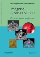 Imagerie Nasosinusienne De  BRAUN - MEDECINE SCIENCES PUBLICATIONS