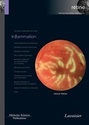 Inflammation (Coll. Coffret rétine, n°4) De Michel WEBER - MEDECINE SCIENCES PUBLICATIONS