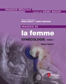 Imagerie de la femme  - MEDECINE SCIENCES PUBLICATIONS